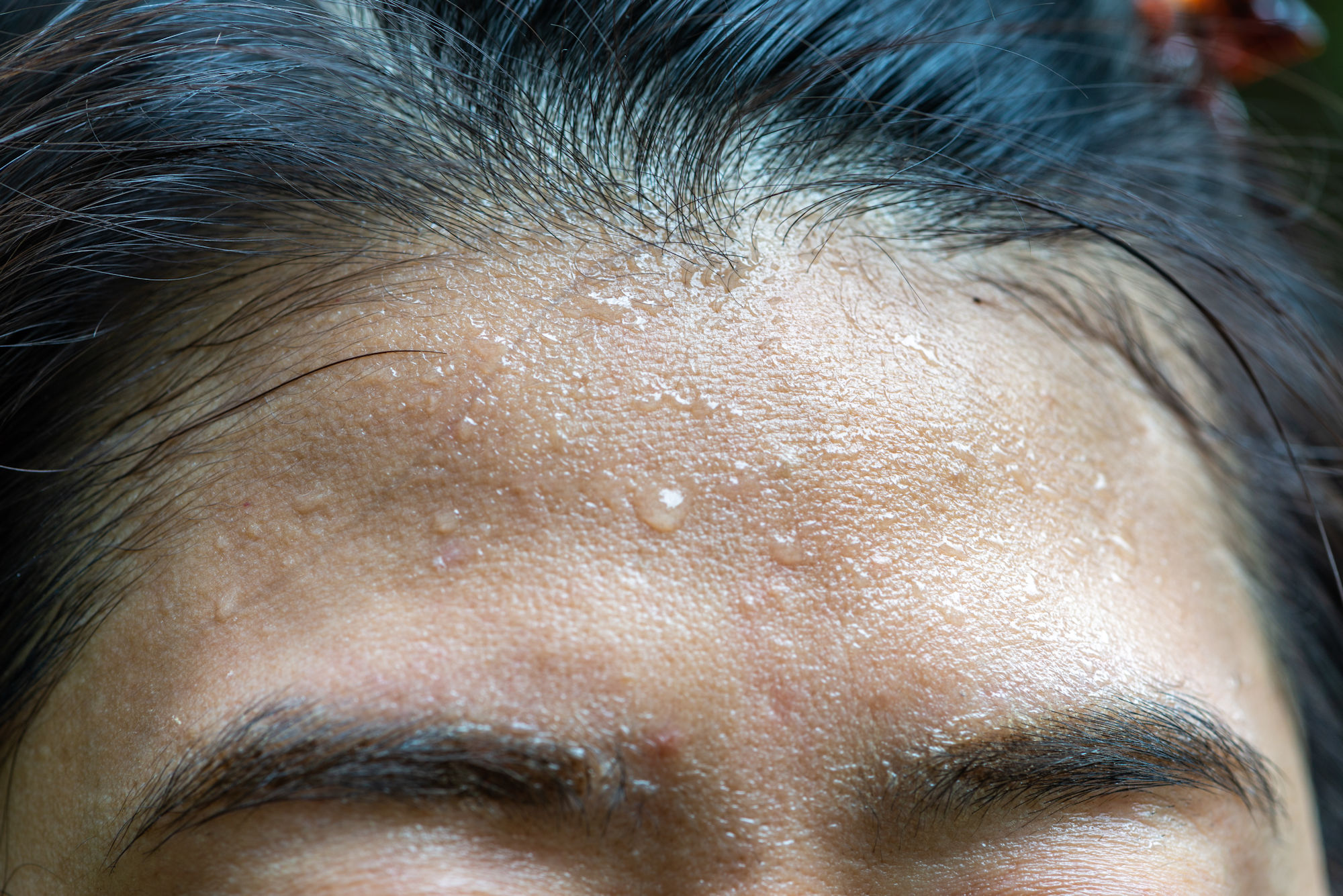 Hyperhidrosis facialis - excessive sweating in the facial area